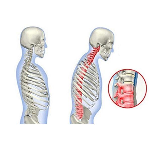Μαγνητική Ζώνη Στήριξης Πλάτης Dr. Levine Posture Support