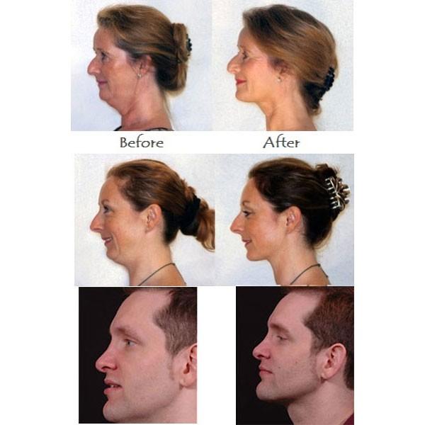 Συσκευή σύσφιξης και τόνωσης του λαιμού - Neckline Slimmer & Toning System
